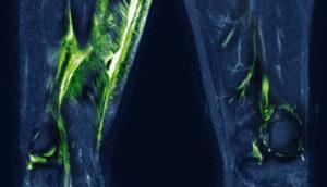 zugspitzsymposium