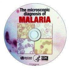 Malaria_report_CD